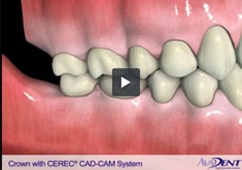 Crown with CEREC®<br></noscript><img class=