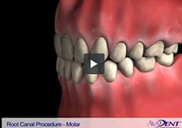 Root Canal -<br></noscript><img class=