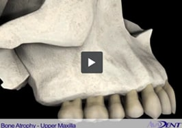 Bone Atrophy -<br></noscript><img class=