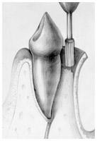 Periodontics - Flap Surgery I