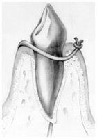 Periodontics - Flap Surgery II