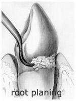 Periodontics - Root Planing