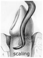 Periodontics - Scaling
